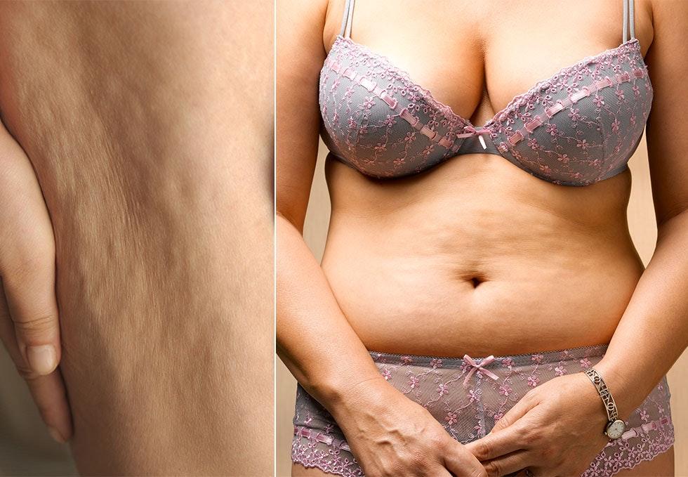 hvordan blir man kvitt cellulitter