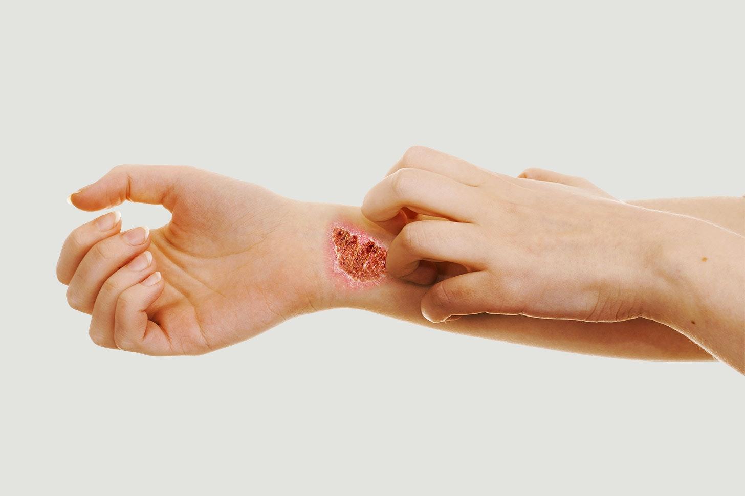 huden klør og brænder