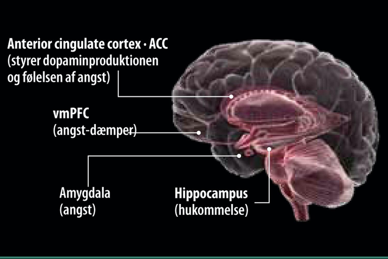 hvad sker der i hjernen ved skizofreni