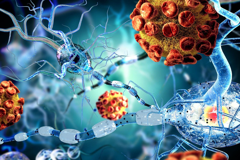behandling sclerose