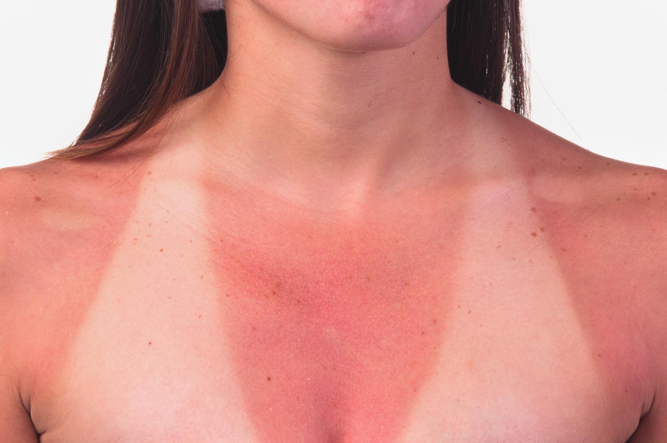 hud klør efter sol