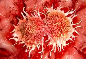 Kraeftceller tldvasjrh1pws9hoziq2ng