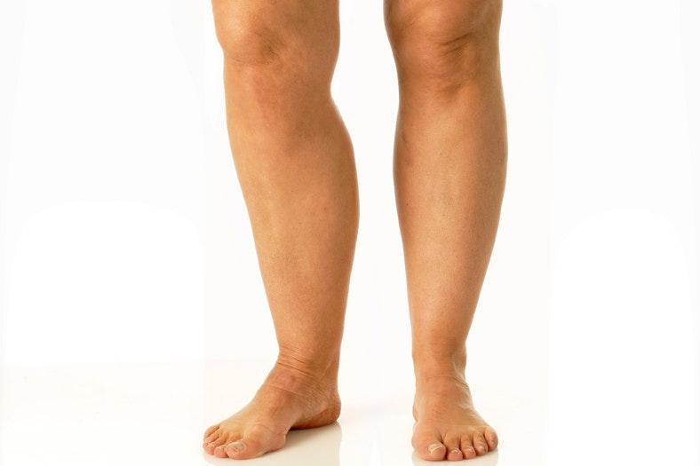 få slanke ben