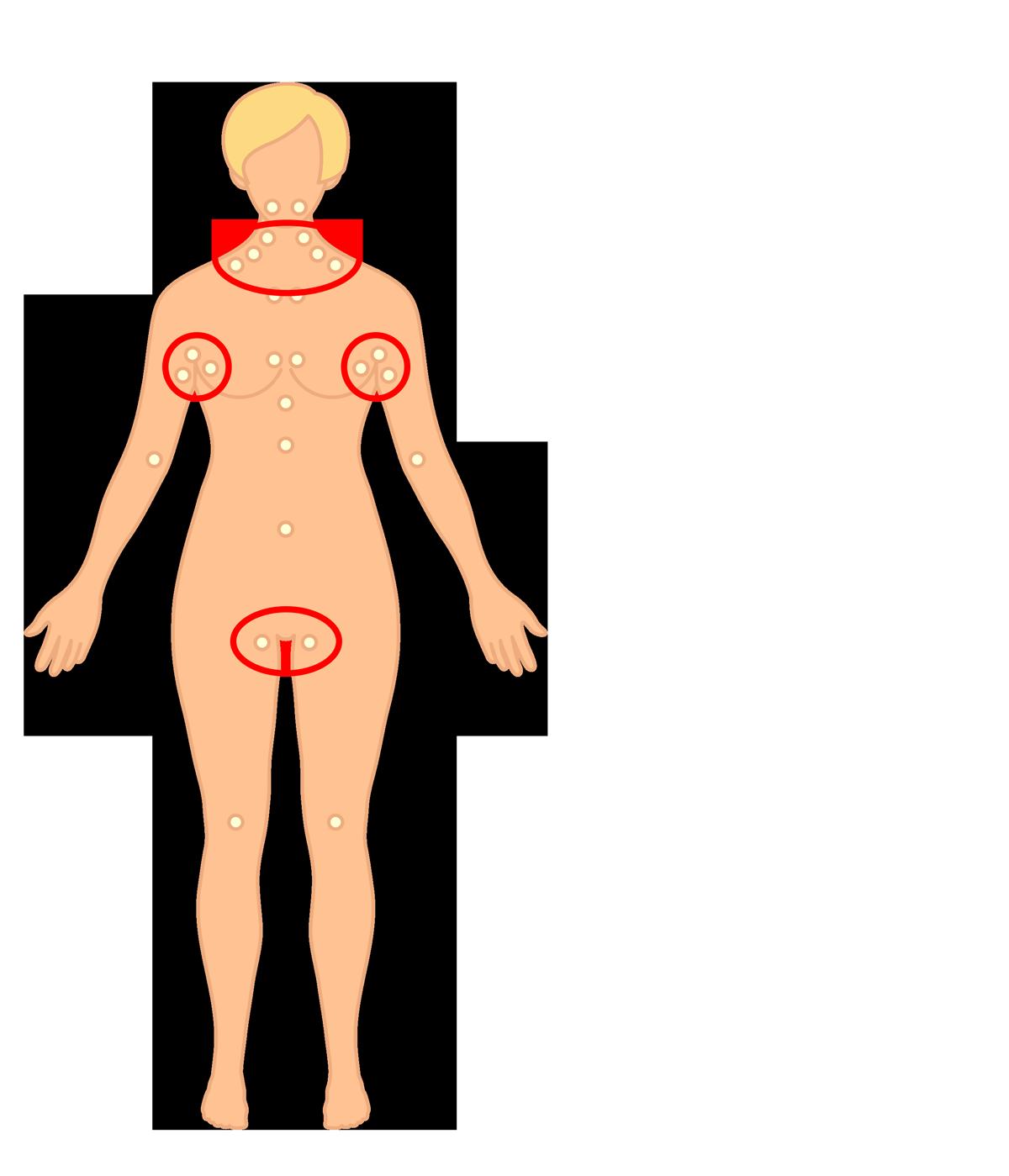 ont under vänstra armhålan
