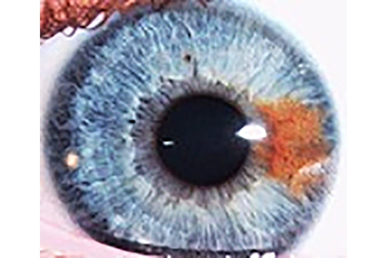 Verschillende kleuren ogen zijn te danken aan genen letsel of ziekte - Hoe het ontwerpen van een levende ...