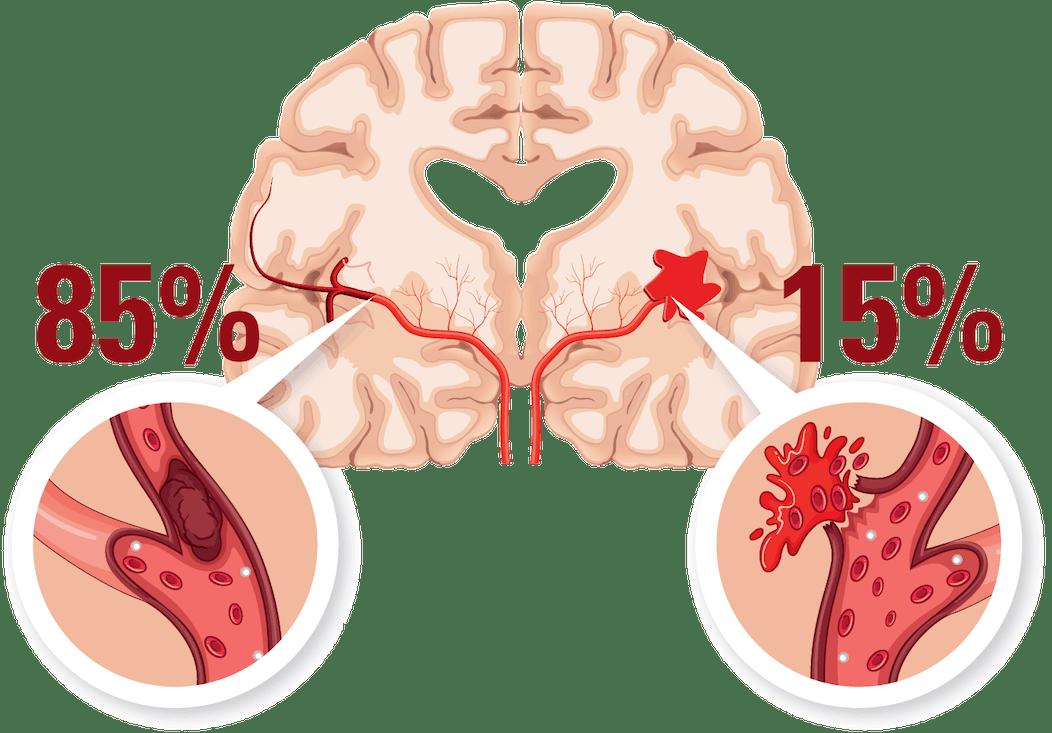 högt blodtryck stroke