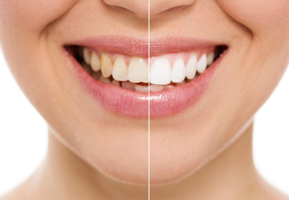 naturlig blegning af tænder