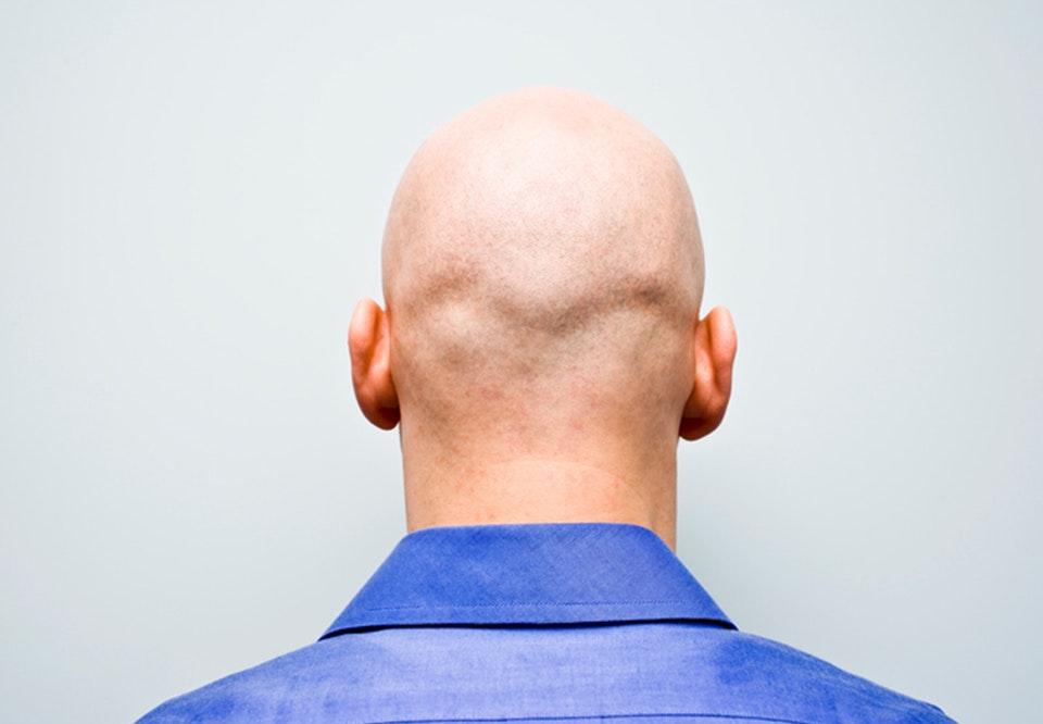 skaldede mænd med skæg