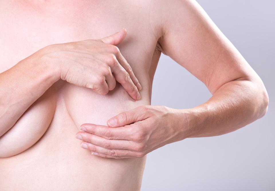 billeder af små bryster kvinder med brystkræft 3