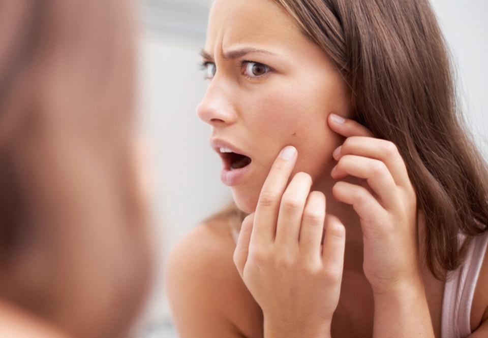 hvordan fjerner man bumser i ansigtet